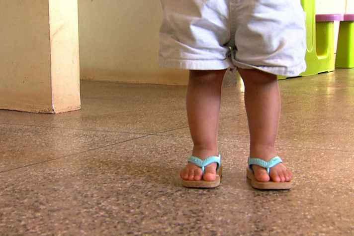 Desigualdades sociais impactam desfechos da doença em crianças brasileiras