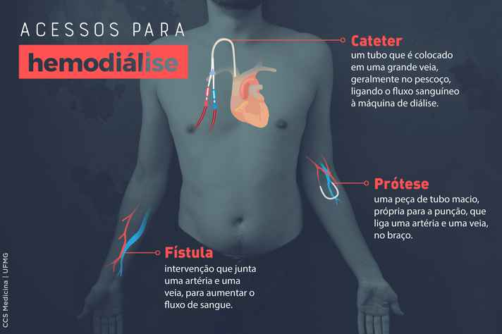 Infográfico Acessos para hemodiálise
