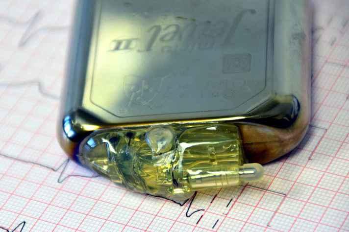 Baterias produzidas pelo Lítio têm durabilidade de 8 a 10 anos.