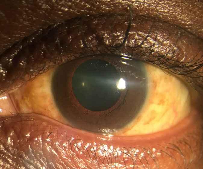 Oclusões microvasculares são as alterações mais comuns entre os pacientes com retinopatia decorrente da febre amarela