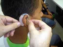 O implante coclear é oferecido pelo Hospital das Clínicas da UFMG/Ebserh