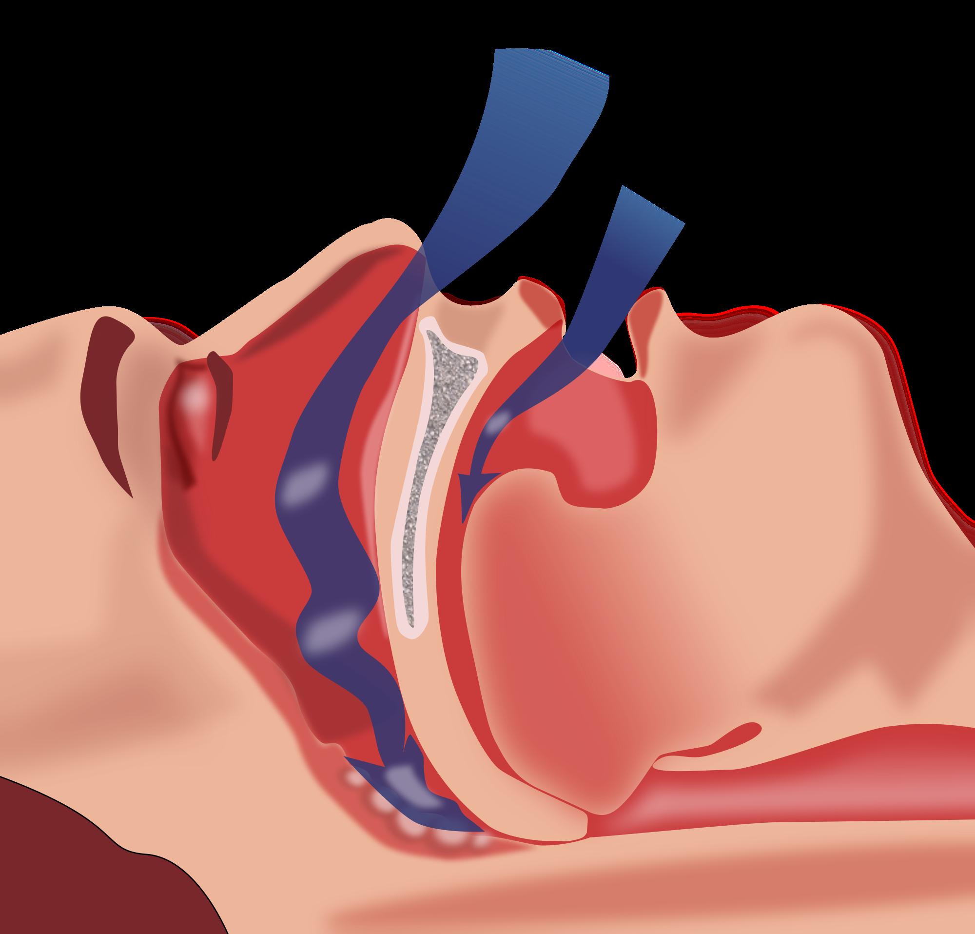 Ilustração mostra a obstrução da respiração, um dos principais distúrbios do sono