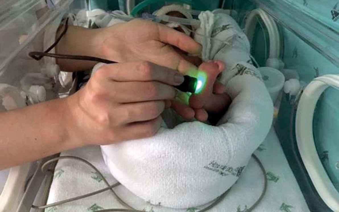 Testes com o dispositivo foram feitos em duas maternidades de BH