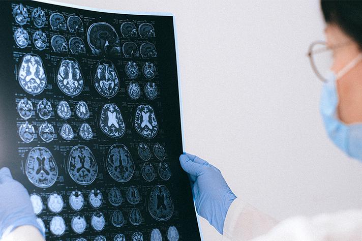 Impactos de natureza cognitiva têm alcançado jovens e pessoas que contraíram formas brandas da doença