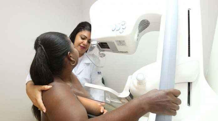 Rastreamento por meio de exames como a mamografia é essencial para diagnóstico precoce de casos de câncer